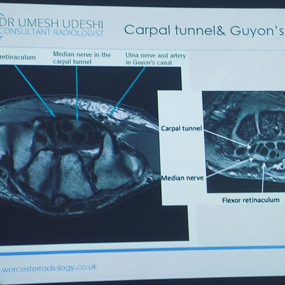MRI Scan of Carpal Tunnel Syndrome - Umesh Udeshi, Cheltenham Cobalt Centre